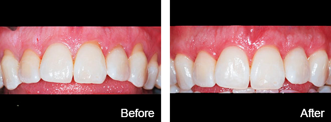 This patient received gum grafting.