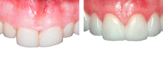 This patient received crown lengthening and veneers to correct his front teeth.