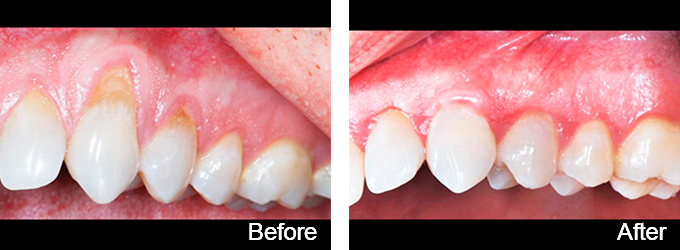 We were able to gain sufficient root coverage with soft tissue gum grafting.