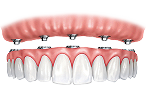 Dental Implant Options